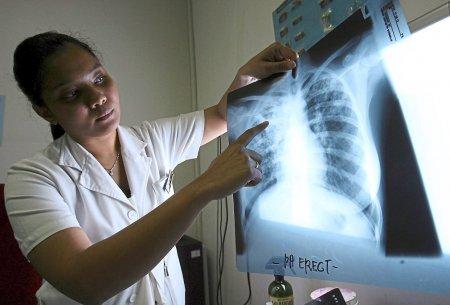 Названы ранние симптомы рака лёгких: чего опасаться