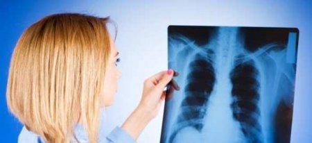 Учёные открыли механизм самоуничтожения туберкулёза