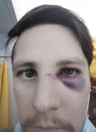Полицейские воЛьвове избили «ветеранов АТО» (ФОТО)
